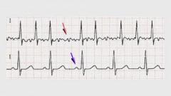 ECG של פרפור עליות (למעלה) ושל קצב סינוס רגיל (למטה). החץ הסגול מצביע על גל P, אשר אינו קיים במקרה של פרפור עליות. (מקור: ויקיפדיה)