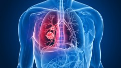 סרטן ריאה (אילוסטרציה)