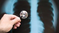 דלקת ריאות (אילוסטרציה)