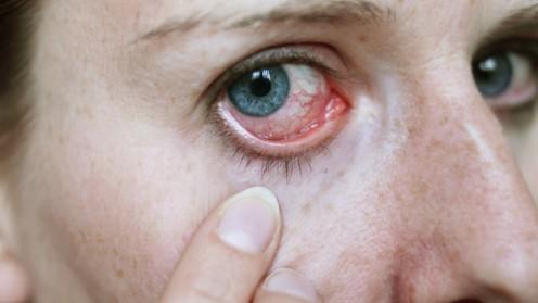 דלקת עיניים (אילוסטרציה)