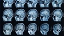 סריקת MRI של המוח (צילום: אילוסטרציה)