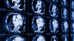 צילום CT של בית החזה (צילום: אילוסטרציה)
