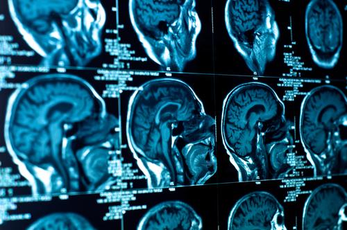 בדיקת CT של הגולגולת (צילום: אילוסטרציה)
