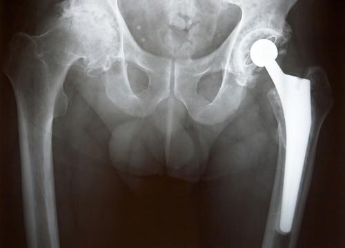 צילום רנטגן לאחר ניתוח החלפת מפרק ירך (צילום: אילוסטרציה)