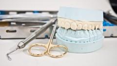 רפואת שיניים (צילום: אילוסטרציה)