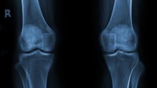 צילום רנטגן של ברכיים (צילום: אילוסטרציה)