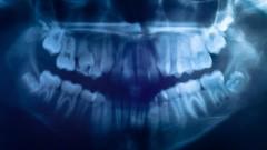 שיניים, תצלום רנטגן (צילום: אילוסטרציה)