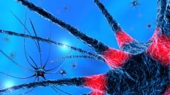 פעילות נוירונים, מחלת פרקינסון (צילום: אילוסטרציה)