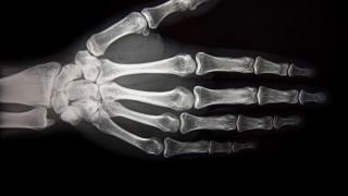 תצלום רנטגן של כף היד (צילום: אילוסטרציה)