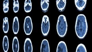 CT של שבץ מוחי (צילום: אילוסטרציה)