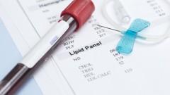 בדיקת שומנים בדם (צילום: אילוסטרציה)