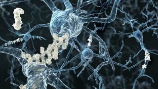 הצטברות אמילואיד במוח (צילום: אילוסטרציה)