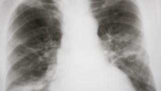 דלקת ריאות (צילום: אילוסטרציה)