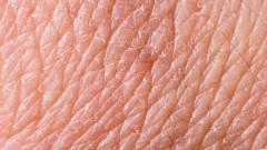 תקריב על עור (צילום: אילוסטרציה)