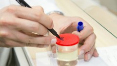 בדיקת שתן (צילום: אילוסטרציה)