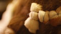פציעה בקרקפת, זעזוע מוח (צילום: אילוסטרציה)