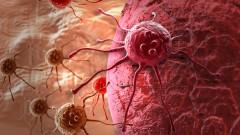 תאי סרטן (הדמיית אילוסטרציה)