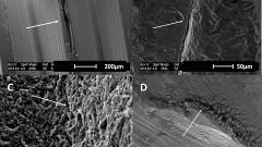 תמונות מיקרוסקופ אלקטרונים של סדקים מלאים שזוהו בפני השטח של שתלים שהוצאו עקב סיבוכים ביולוגיים (צילום: דוברות הטכניון)