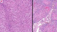 כבד תקין (משמאל) לעומת כבד עם צירוזיס (צילום: אילוסטרציה)