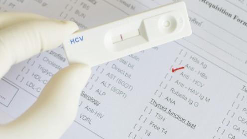בדיקה לאיתור נוגדנים ל-HCV (צילום: אילוסטרציה)