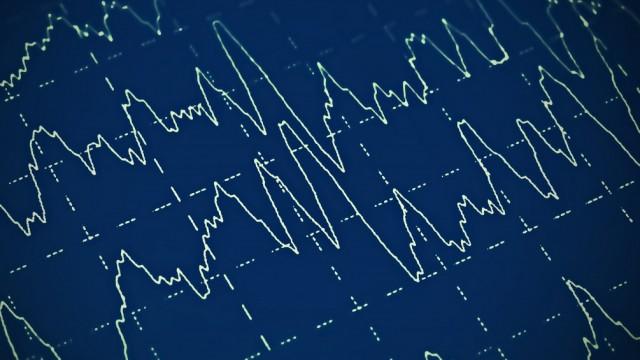 בדיקת EEG של המוח, אפילפסיה (צילום: אילוסטרציה)