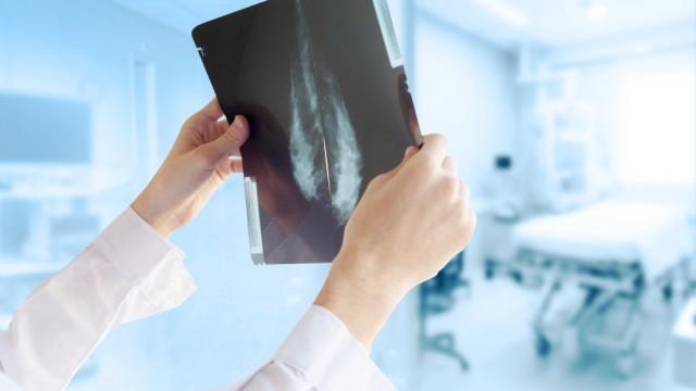 בדיקת ממוגרפיה, רופאת נשים (צילום: אילוסטרציה)