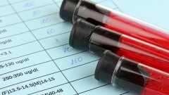 בדיקות דם (צילום: אילוסטרציה)