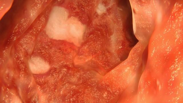 מחלות מעי דלקתיות, קרוהן (צילום: אילוסטרציה)