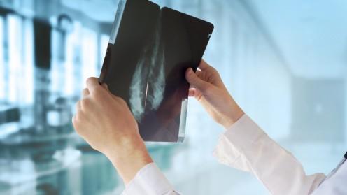 תוצאות ממוגרפיה, סרטן שד (צילום: אילוסטרציה)