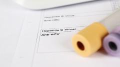בדיקת להפטיטיס C (צילום: אילוסטרציה)