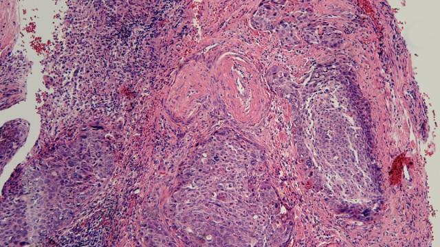 סרטן צוואר הרחם (צילום: אילוסטרציה)