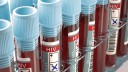 בדיקת איידס, HIV (צילום: אילוסטרציה)