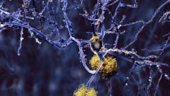 הצטברות פלאק על תאי עצב במוח (הדמיית אילוסטרציה)