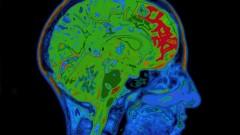 הדמיית MRI של המוח (צילום: אילוסטרציה)