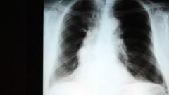 צילום רנטגן של הריאות, מחלת COPD (צילום: אילוסטרציה)
