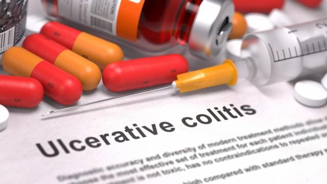 קוליטיס כיבית (צילום: אילוסטרציה)