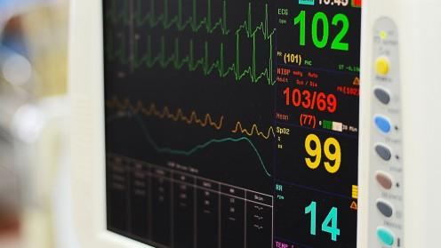 מוניטור לב, בעיות קרדיווסולריות (צילום: אילוסטרציה)