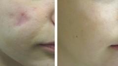 """טיפול בצלקות, תמונת לפני ואחרי (צילום: """"שערי צדק"""")"""