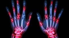 rheumatoid arthritis, דלקת מפרקים שגרונית (הדמיית אילוסטרציה)