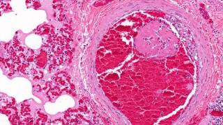 פקקת ורידים, venous thromboembolism (צילום: אילוסטרציה)