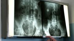 רנטגן של אזור הכליות (צילום: אילוסטרציה)