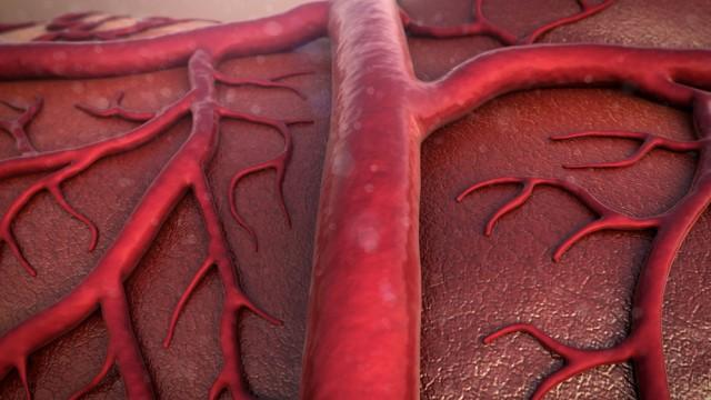 כלי דם (הדמיית אילוסטרציה)