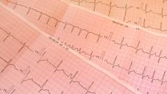 """בדיקות אק""""ג, הפרעות בקצב הלב (צילום: אילוסטרציה)"""
