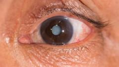 קטרקט, ירוד בעין (צילום: אילוסטרציה)