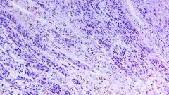 מלנומה, סרטן עור (צילום: אילוסטרציה)