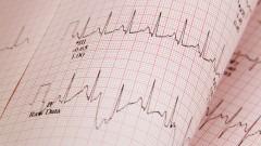 """בדיקת אק""""ג של הלב (צילום: אילוסטרציה)"""