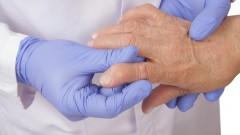 דלקת מפרקים שגרונית, בדיקה על ידי רופא (צילום: אילוסטרציה)