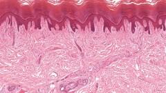 תמונת חתך של עור אנושי, סרטן עור (צילום: אילוסטרציה)