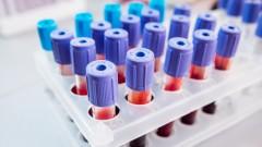 בדיקות דם, רמת פריטין (צילום: אילוסטרציה)