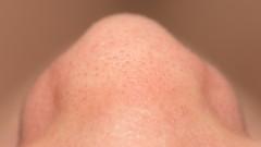 אף, סטייה במחיצות האף (צילום: אילוסטרציה)